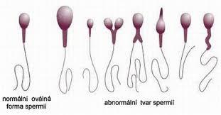 Моролоия спермиев крюгер